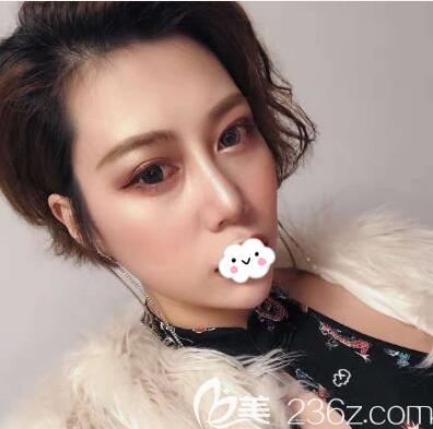 在成都蜀尚蓉雅找陈建华做了内切去眼袋+鼻综合手术,跟小姐妹相约一起变美