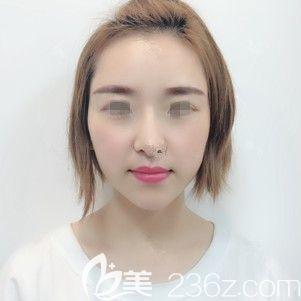 00后的我微整首秀就是到南京医科大学友谊整形扬州分院注射1支乔雅登改善太阳穴、1支法思丽改善鼻唇沟