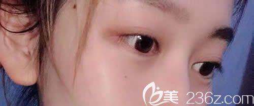 西宁祛眼袋哪家医院好?看我找西宁夏都整形周婷做韩式无痕祛眼袋1个月恢复效果图就知道了