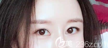 """九江华美整形割双眼皮+开眼角手术给我成功塑造了""""桃花眼"""",给你们看看术后2个月效果"""