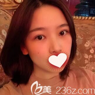长沙亚韩谁做的双眼皮好?看我找郑京湘做的韩式切开双眼皮+开眼角术后50天恢复效果怎么样?