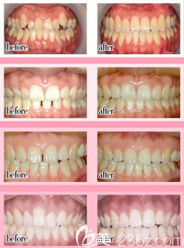 广州紫馨张程做的隐形牙齿矫正案例