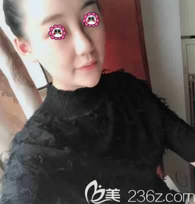我在北京新星靓京广找张立彬做面部吸脂一月效果就感觉脸小确实好看