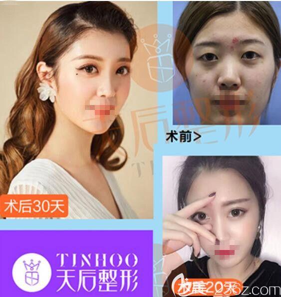 白俊涛医生顾客双眼皮前后对比照片