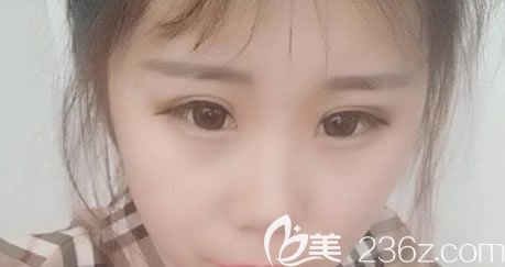宁波韩美双眼皮案例15天效果