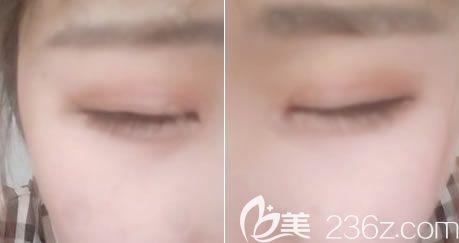 做全切双眼皮15天疤痕恢复照片