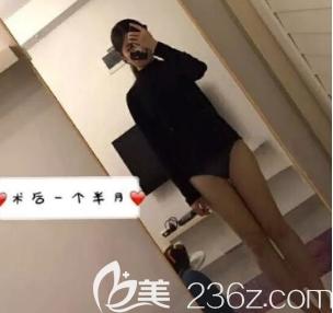 认真少女分享3月在济南塑星医疗诊所做的大腿吸脂手术的恢复过程,不要嫌弃我啰嗦