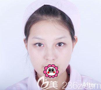 齐齐哈尔双眼皮哪里做的好?齐齐哈尔君悦高松双眼皮+祛眼袋手术后回归小少女