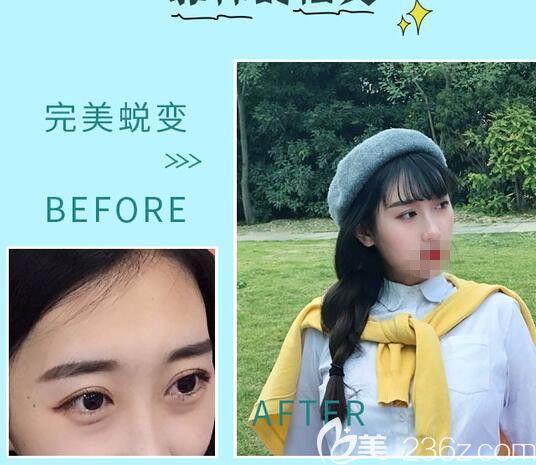 郑州菲林去眼袋手术前后对比照片