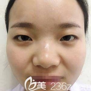 骆豫医生的双眼皮整形案例