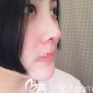郑州非零做线雕和肋软骨隆鼻手术术后7天