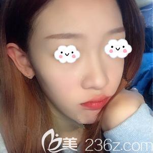 在天津美联致美做鼻综合整形后惊艳到了自己,毕竟谁让以前是个拉低颜值的蒜头鼻