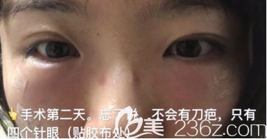济南激光去眼袋+自体脂肪填充泪沟第二天的效果图