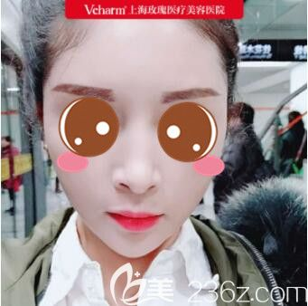 公开我在上海玫瑰找王晨光做自体脂肪面部填充经历以及全面部填充恢复过程图