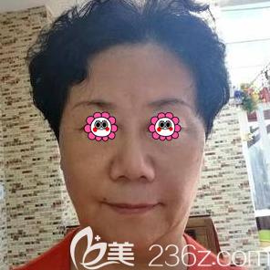 面部埋线提升多少钱?我在北京煤炭总医院做埋线提升价格和效果分享