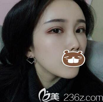 公开我找长沙亚韩医学美容医院易东风做自体脂肪填充全脸+全切双眼皮的亲身经历及术后恢复过程效果图!