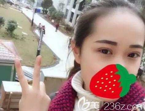 到哈尔滨超龙做双眼皮怎么样?多少钱?分享哈尔滨超龙王海刚精雕媚眼术案例