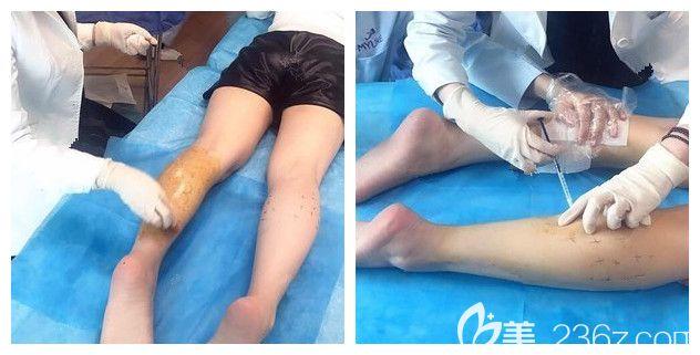 南京美莱医生注射瘦腿针过程中