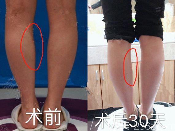 南京美莱医疗美容门诊部李微术后照片1