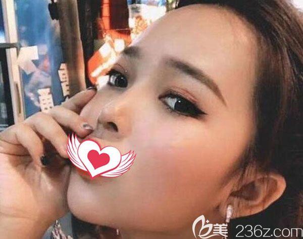 真实反馈找昆明美立方找刘凤斌做了膨体隆鼻一个月到三个月恢复的越来越自然