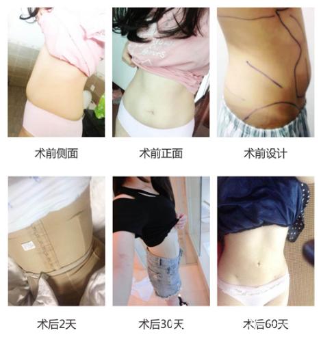 广州军美王娜医生腰腹部吸脂案例过程图