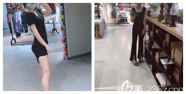 担心大腿吸脂没效果?小仙女在南京美莱做大腿吸脂3000ml腿围瘦了5厘米没有出现凹凸不平等副作用
