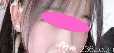 本打算玻尿酸隆鼻的我在西宁夏都许碧清主任建议下做了假体隆鼻,给你们看看术后40天效果怎么样