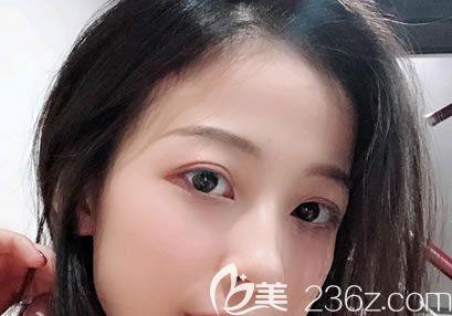 我用杭州群英整形外切眼袋恢复过程图片证明割眼袋也可以做到无痕的,一个月就恢复自然了