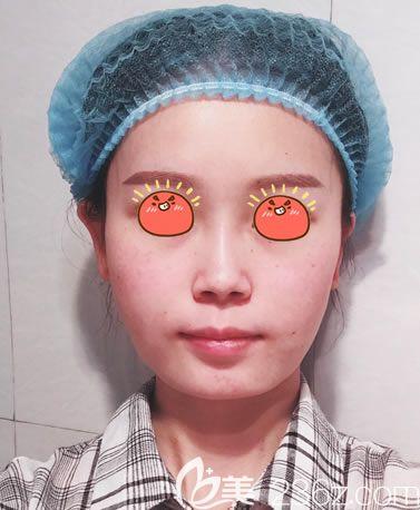 杭州时光医疗美容医院刘争术前照片1