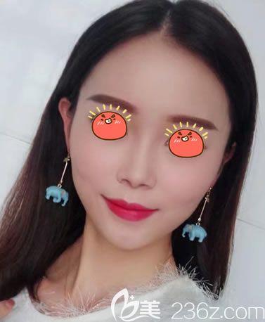 杭州时光刘争注射瘦脸针案例
