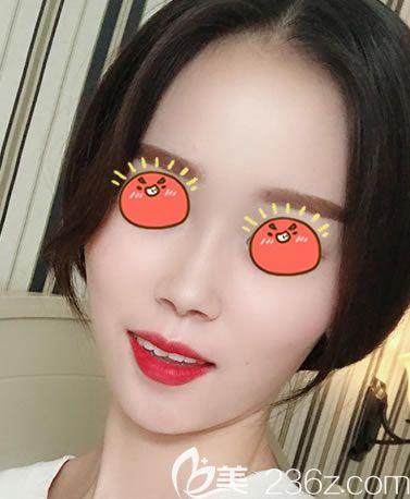 杭州时光医疗美容医院刘争术后照片1
