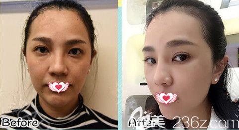 邯郸雅丽六月颜值青春季推出超多整形优惠 韩式生料假体隆鼻和埋线提升都是1980元