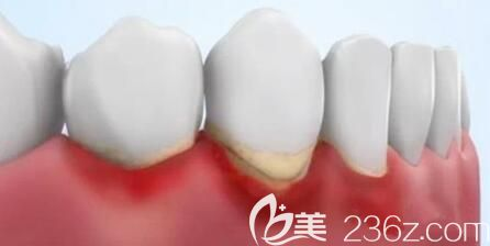 洛阳九龙口腔史万丽介绍牙周炎的治疗方法