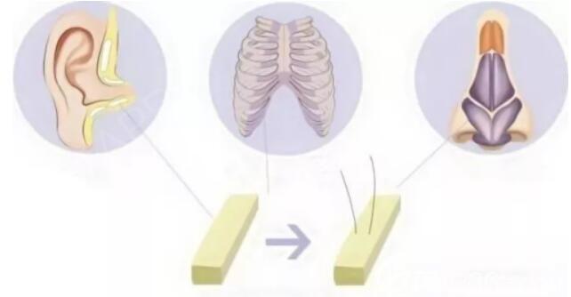 鼻修复方案 半肋鼻修复