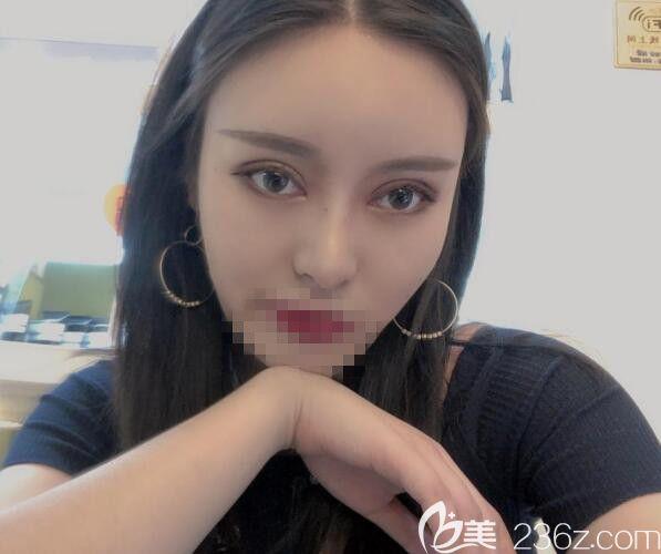 双眼皮宽窄不一致的我到郑州艺龄做了双眼皮+开眼角 艺速明星眼真的让我灿若欧美大眼妹