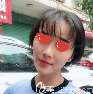 长沙美之峰医疗美容门诊部刘磊术后照片1