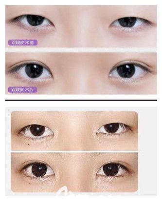 邯郸丽人双眼皮手术案例