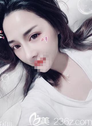 实话实说:在郑州艺龄做的鼻综合整形的确是我一生都不会后悔的决定