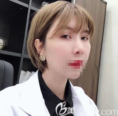 郑州艺龄员工亲自体验李冰院长的自体脂肪填充手术 年轻美丽妥妥的