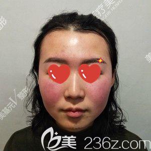 武汉美基元医疗美容医院汪洋 术前照片1