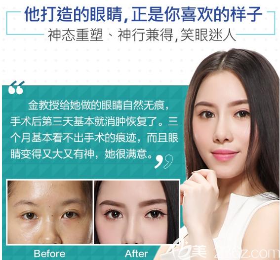 广州美莱金宪俊做的双眼皮眼综合案例
