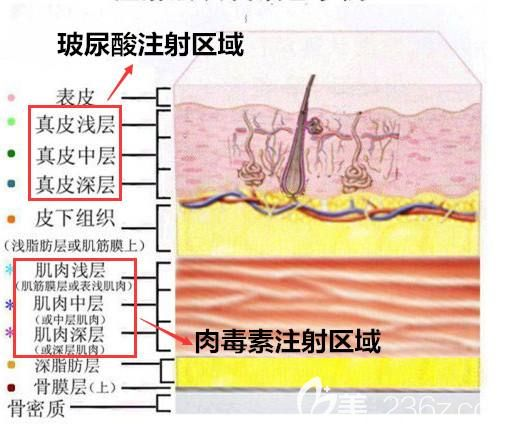 除皱针+玻尿酸的联合治疗