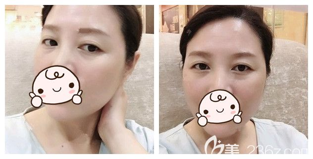 1ml艾莉薇玻尿酸+50u衡力除皱针联合治疗,终于在南京亚韩改善了我的抬头纹、鱼尾纹等等初老症状