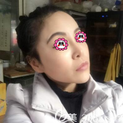 北京艺美医疗美容诊所王东术后照片1