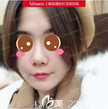 线雕面部针眼几天消失?我在上海玫瑰找刘娟做面部线雕绝对的良心价格效果还自然