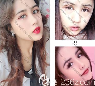 新疆青松星范双眼皮案例
