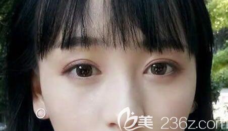 谁说割出来的双眼皮很假,来看我找曲靖靖美张金明做全切双眼皮+开眼角的效果怎么样