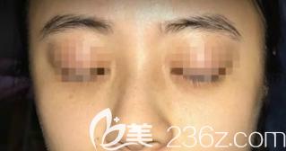 激光祛斑术前的样子