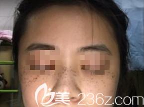 在潍坊做激光祛斑术后第2天的样子