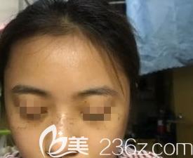 在潍坊做激光祛斑术后第5天的样子